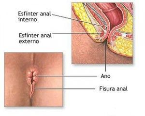 La fisura anal