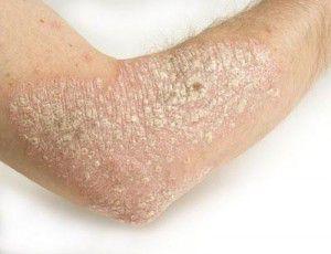 Como curar la psoriasis de las palmas y las suelas