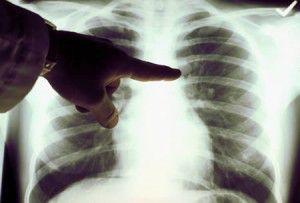4cancer-de-pulmon