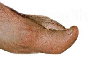 gout-foot-1