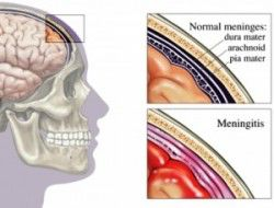 300px-meninges_diagram-2