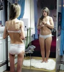 anorexia1244