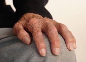 artritis2