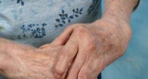 tratamiento_artritis_reumatoide_011