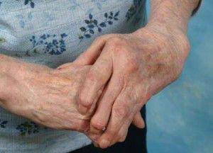 tratamiento_artritis_reumatoide_01