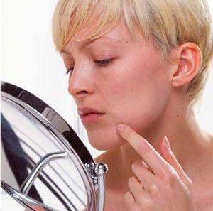 acne-control