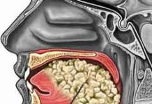 cancer_oral_bucal_lengua_piso1