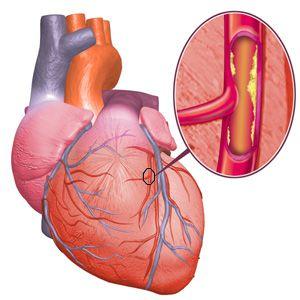 corazon-colesterol
