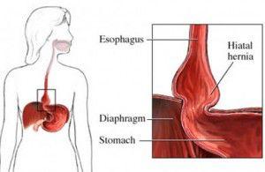La dieta perfecta si tienes hernia de hiato blog de farmacia - Alimentos prohibidos para la hernia de hiato ...