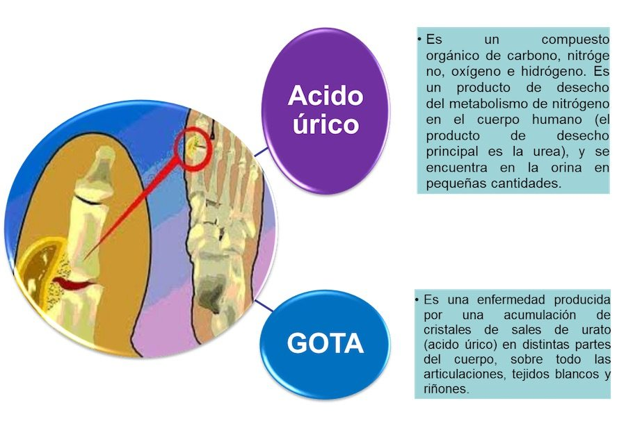 acido urico maos sintomas tratamiento para la psoriasis de gota verduras contraindicadas para el acido urico