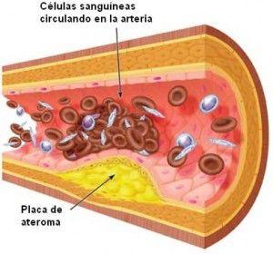 wpid-arteriosclerosis