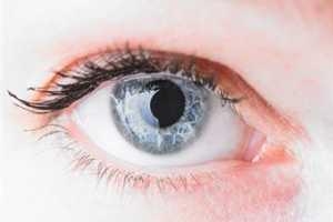 ojos_cataratas