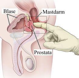 prostata_untersuchung_677-2