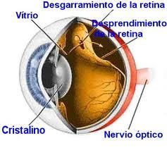 Causas del desprendimiento de retina