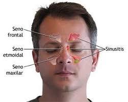 sinusitis-consejos