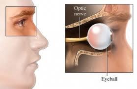 En que consiste la neuritis optica