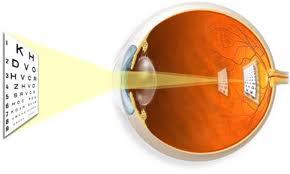 astigmatismoo