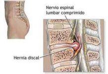 herniadisco