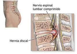 Los síntomas de la hernia de disco