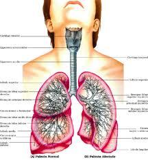Asma-Bronquial