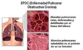 epoc1