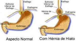 herniahiatos