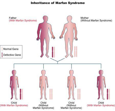Marfansindrome