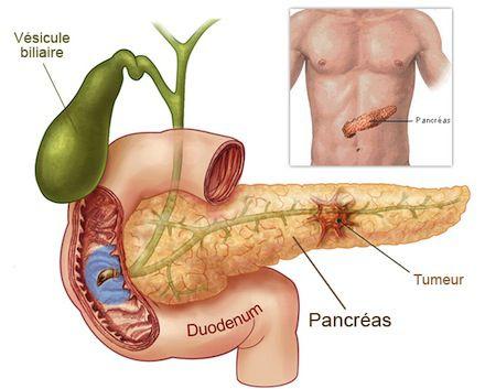 cancer-de-pancreas