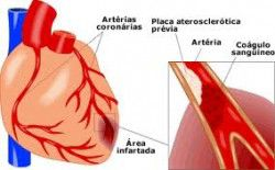 infartomiocardio