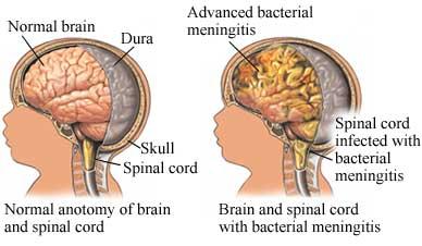 meningitis1