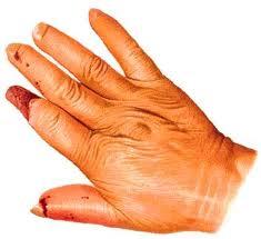 Esclerodermia