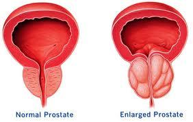 cuanto dura una prostatitis Prostatitis és prosztatarák különbségek