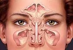 sinusitosmicotica