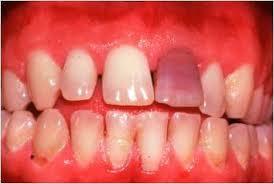Antibiotico-que-decolora-los-dientes
