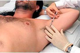 Botox-para-la-transpiracion