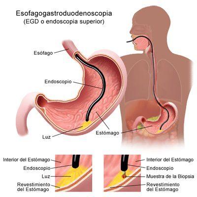 digestivas-hemorragias