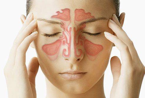 sinusitis1
