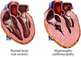 Posible-gen-responsable-de-cardiomiopatia