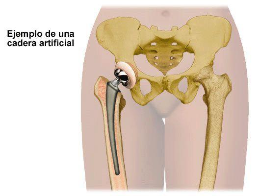 Implantes de prótesis de cadera