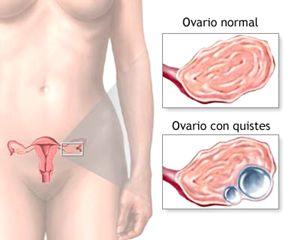 cancer-ovarios