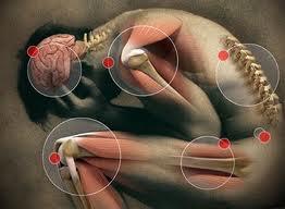 Dolores punzantes o como de aguja pueden ser señal de lesión del nervio