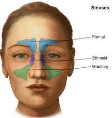 El uso de antibióticos suele no funcionar para los casos de sinusitis