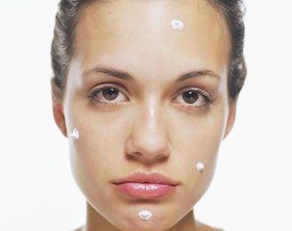 medicina-alternativa-para-el-acne-2