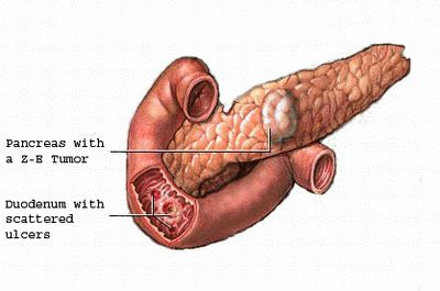 sindrome-de-zollinger-ellison