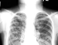 fibrosis-pulmonar-idiopatica