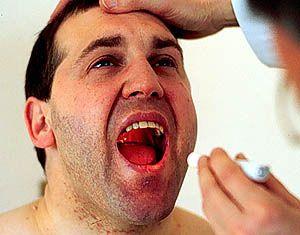 boca y cancer pancreas