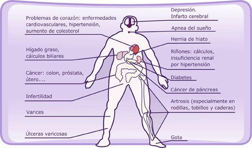 Los-riesgos-para-la-salud-de-la-obesidad