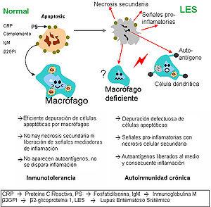 Avances-contra-el-lupus-gracias-a-la-medicina-biologica