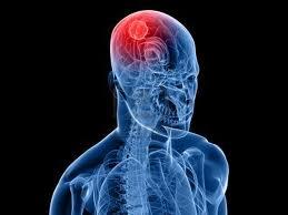 Avances-para-el-tratamiento-de-tumores-cerebrales