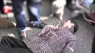 Crisis crónica y repetida como síntoma de una epilepsia generalizada
